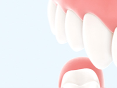 Was ist Parodontitis?