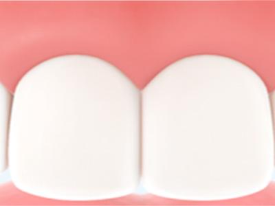 Warum ist Parodontitis gefährlich?