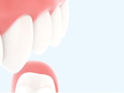 Was sind Anzeichen für Parodontitis?