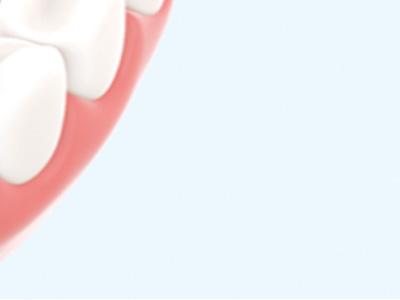 Reicht auch regelmäßiges Zähneputzen?